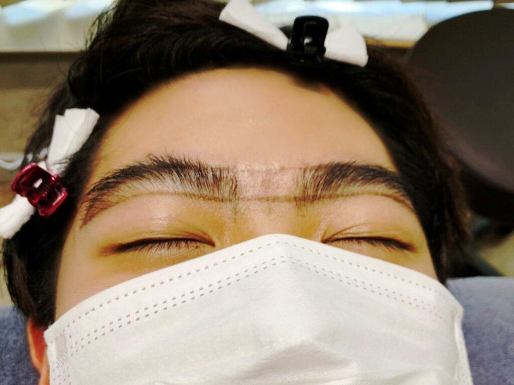 施術中の眉毛の写真